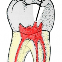 eliminer anesthesie dentaire