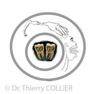 prévoir la douleur après traitement endodontique ?