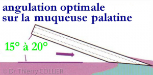 Angulation optimale sur la muqueuse palatine