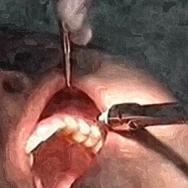 anesthésie d'une prémolaire