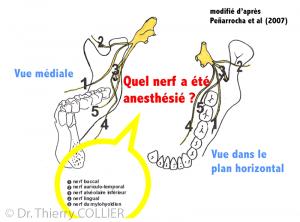 Quel nerf anesthésie ?