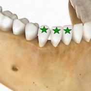 protocole d'anesthésie de la canine et des incisives mandibulaires