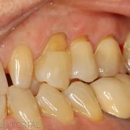 1. Les dents 24, 25, 26 présentent des lésions cervicales entraînant des sensibilités. Un facteur étiologique occlusal peut ici être évoqué: l'absence de la canine perturbe l'occlusion et entraîne l'implication de la 24 dans la fonction de guidage.