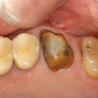 Fig.1 - La dent 26 est préparée en vue de l'empreinte optique, la limite cervicale est bien visible