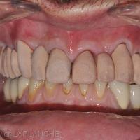 Fig. 11 - Dans une autre situation clinique : Bridge d'essai en bouche.