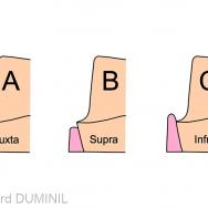 1. Trois positions possibles pour la limite périphérique en prothèse.