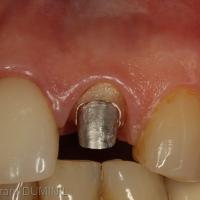 4. Limite légèrement sous gingivale, le sulcus gingival est parfaitement sain.