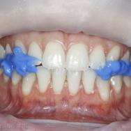 9. Étape 5. Du composite d'occlusion auto-polymérisable est injecté directement dans la position maintenue par le plan de Kois.