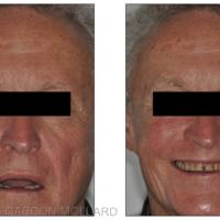 Fig. 5 : Vues extrabuccales à l'échelle du visage.
