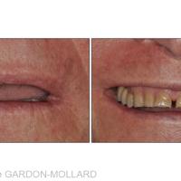 Fig. 6 : Vues extrabuccales à l'échelle dento-labiale.