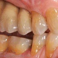 5a. Restauration du secteur mandibulaire droit.