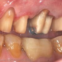 6b. Détails des préparation dentaires dans le secteur maxillaire gauche.