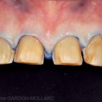 7d. Préparations et empreintes pour les facettes du secteur antérieur maxillaire (de 13 à 23).