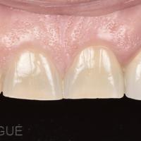 Fig. 3a : Vue rapprochée du secteur antérieur maxillaire.