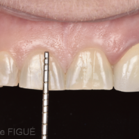 Fig. 3c : Proportions des incisives centrales maxillaires.