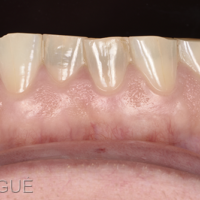 Fig. 3d : Vue rapprochée des incisives mandibulaires.