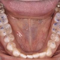 Fig. 1f - Mock-up en vue occlusale mandibule.