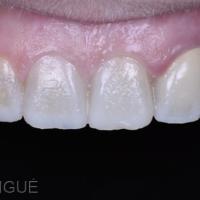 Fig. 3b - Photographie intrabuccale de face avec contrasteur.