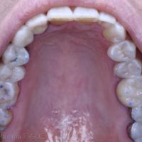 Fig. 3c - Vue occlusale maxillaire.