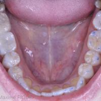 Fig. 3d - Vue occlusale mandibulaire.