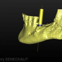 Fig. 5 : 3D du côté gauche