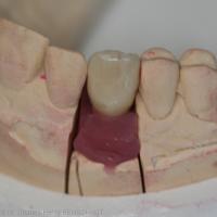 Fig. 6 Couronne céramo-métallique (laboratoire de prothèse Idental, Vaucresson)