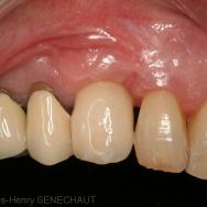 Fig. 9 Couronne scellée sur le pilier implantaire