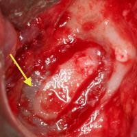 Fig 4 : Fenêtre d'accès au sinus maxillaire