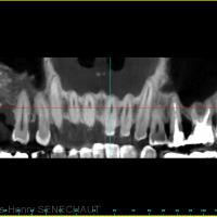 Fig 8 : Coupe panoramique du scanner après la greffe