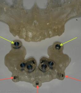 Fig1 : Guide chirurgical à appui osseux : canons de guidage des implants ptérygoïdiens (flèche jaune) et canons de guidage pour les vis de fixation (flèche orange)