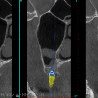 Fig3 : Situation de l'artère palatine (flèche orange) sur les coupes coronales antérieures