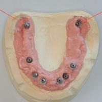 Fig3 : Position des implants ptérygoïdiens au niveau des tubérosités sur un modèle de laboratoire (flèches oranges)