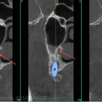 Fig4 : Situation de l'artère palatine (flèche orange) sur les coupes coronales intermédiaires