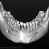 Fig 2 : Modèle 3D de la dentition