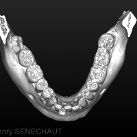 Fig 3 : Modèle 3D de la dentition