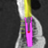 Fig 7 : Traits verticaux verts : Préservation des 2mm d'os vestibulaire