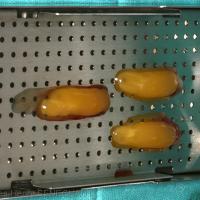 Fig1 : Caillots de L-PRF disposés dans la box Xpression™