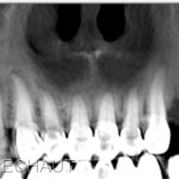 Fig 1 : Coupe panoramique : noter la déhiscence extrême de la face latérale du sinus gauche