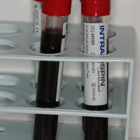 Fig2 : Prélèvement sanguin effectué