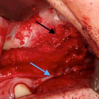 Fig 2 : Cavité sinusienne greffée (flèche noire : situation de la déhiscence osseuse, flèche bleue : situation de l'incision principale)