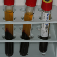 Fig5 : Tubes après centrifugation