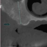 Fig 6 : Coupe coronale au niveau de 26 (hauteur osseuse : 14 mm)