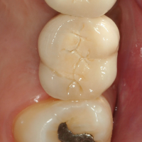 Fig 15 : Couronne 26 en bouche