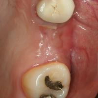 Fig 7 : Gencive cicatrisée