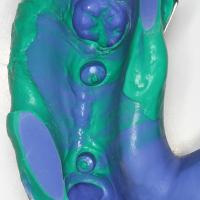 Empreinte implantaire réalisée directement sur les vis Bellatek Encode