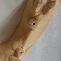 Le modèle obtenu par le prothésiste doit comporter des surfaces occlusales des vis intactes