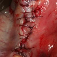 Site suturé