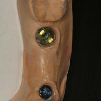 Analogues d'implants positionnés dans le modèle grâce à Robocast