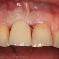 Fig. 3 : Couronne transvissée provisoire à 1 semaine mois post-opératoire