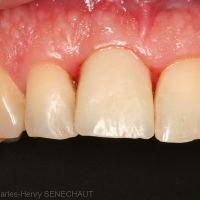 Fig. 4 : Couronne transvissée provisoire à 3 mois post-opératoire